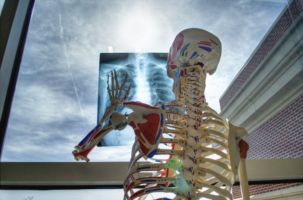 erős csontok